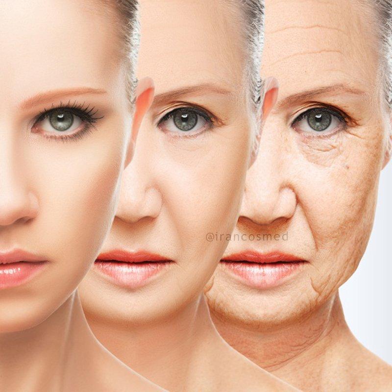 روغن ضد چروک پوست صورت و اطراف چشم ترکیبی